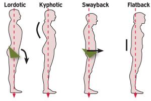 postura-perfetta-compressor