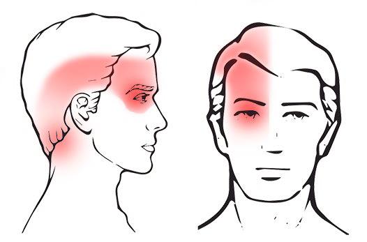 sintomi cefalea cervicogenica