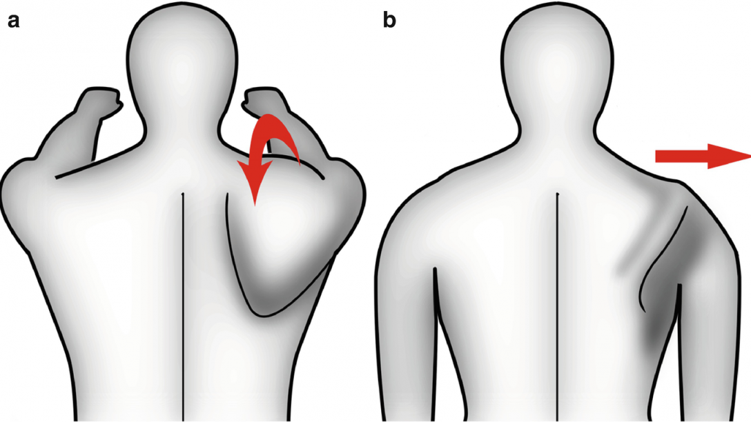 discinesia scapolare