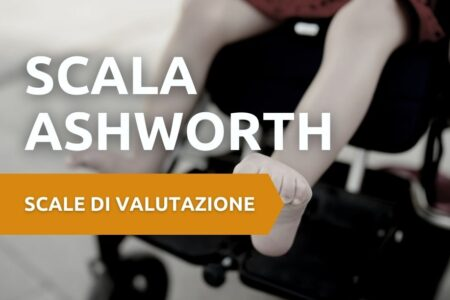 scala ashworth